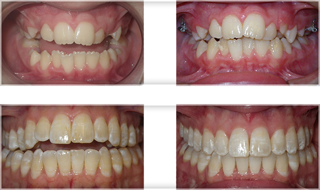 Riordan Orthodontics 187 Bite Problems